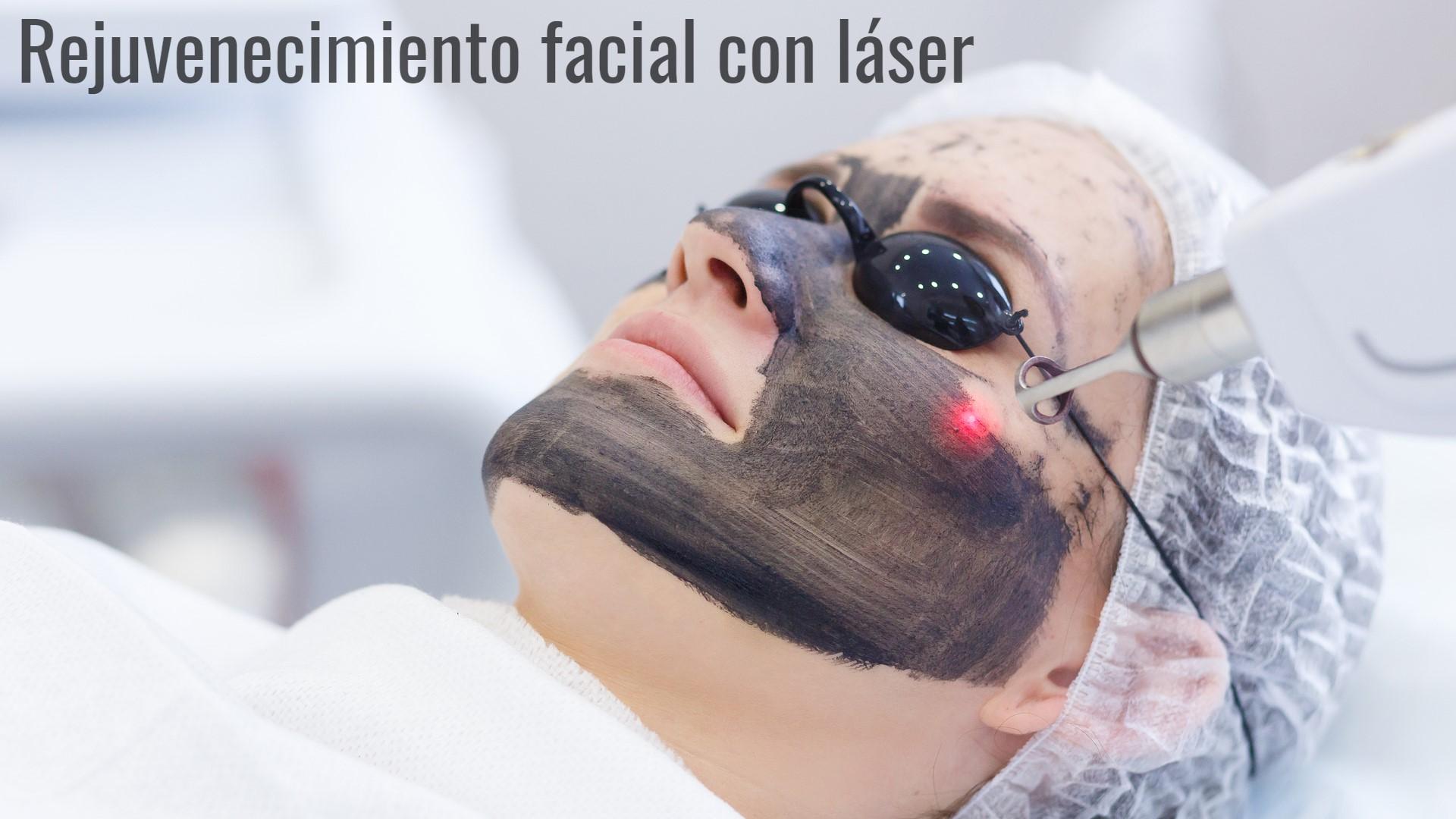 tratamiento peeling facial